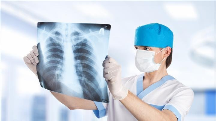 medical doctor looking at x-ray picture of lungs in hospital