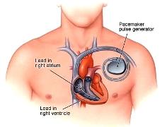 Cura-malattie-del-cuore-il-nuovo-pacemaker-compatibile-con-la-risonanza-magnetica.-Pacemaker-Advisa-DR-MRI